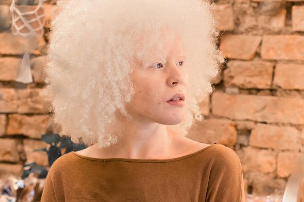 Negra, albina e com baixa visão, bolsista é aprovada em 1º lugar na USP pelas cotas